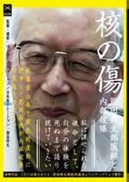 「核の傷 肥田舜太郎医師と内部被曝」のポスター/チラシ/フライヤー